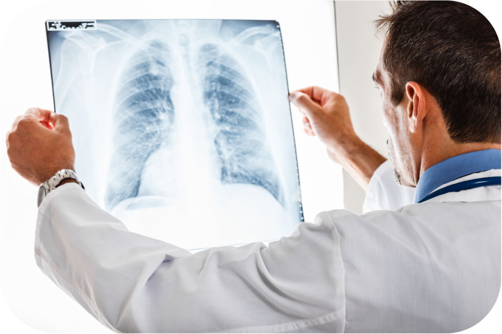 Idiopathic lung treatment